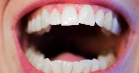 uploads/2018/05/teeth-1652937_1280.jpg